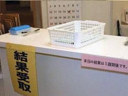 HIV検査・結果受付